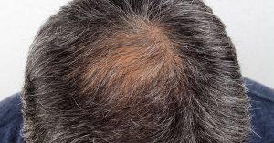 Den bästa guiden till hårtransplantationer